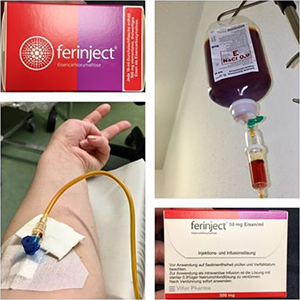 Iron infusion-Ferinjet